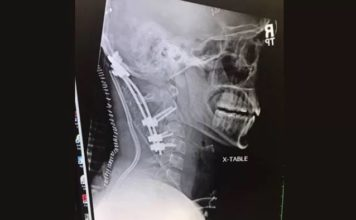22-Year-Old Survives Rare 'Internal Decapitation' Injury from Crash. He Previously Beat Brain Cancer.