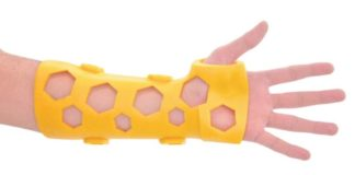 This 3D printed splint promises to replace conventional plaster