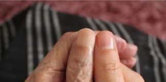 What Are Human Wrinkles?