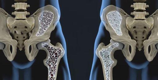 osteoparosis